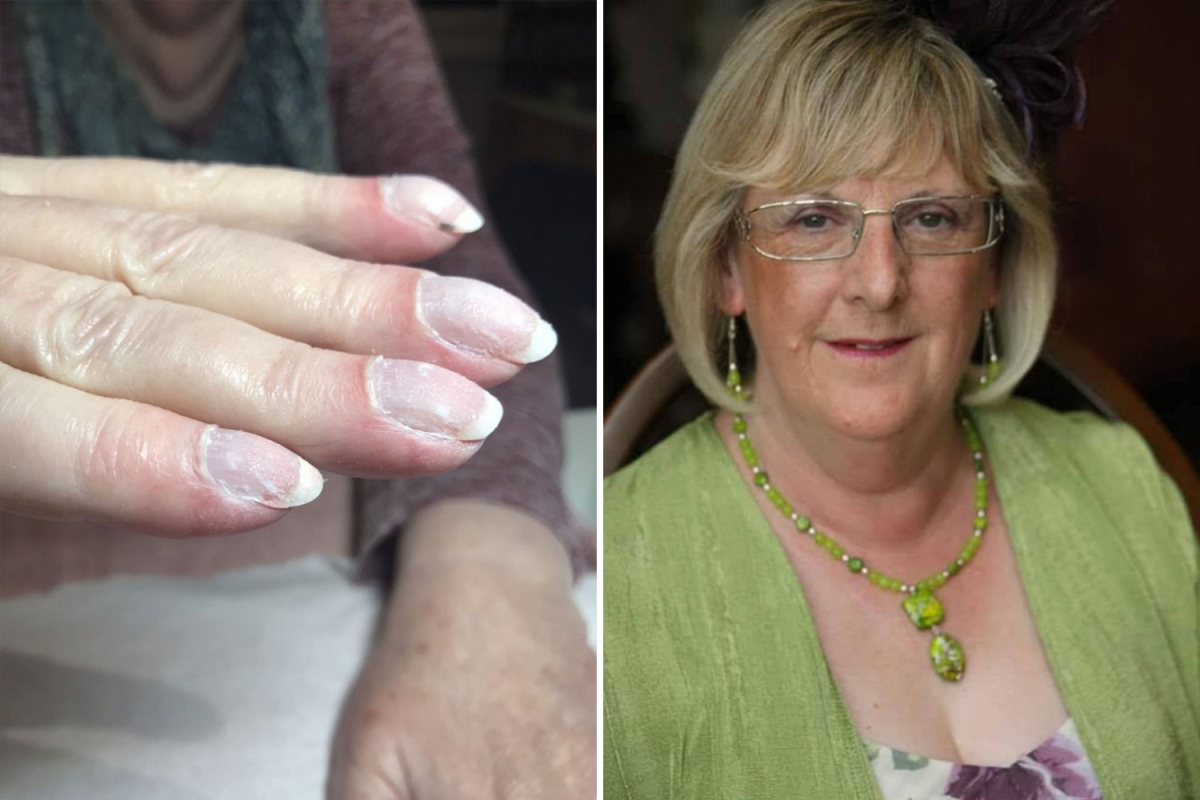 Beautician saves gran's life after spotting signs of lung cancer in her nails